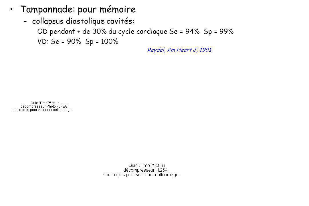 Tamponnade: pour mémoire –collapsus diastolique cavités: OD pendant + de 30% du cycle cardiaque Se = 94% Sp = 99% VD: Se = 90% Sp = 100% Reydel, Am He