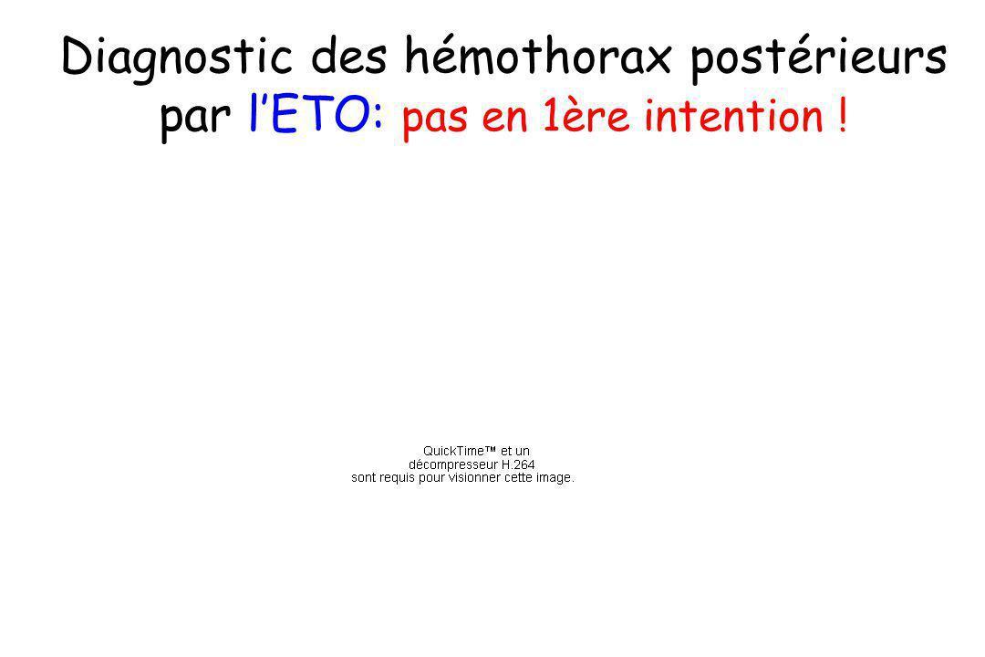 Diagnostic des hémothorax postérieurs par lETO: pas en 1ère intention !