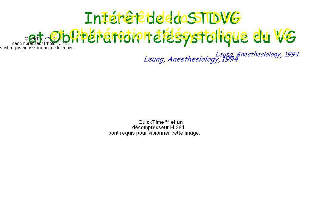 Intérêt de la STDVG et Oblitération télésystolique du VG Leung, Anesthesiology, 1994