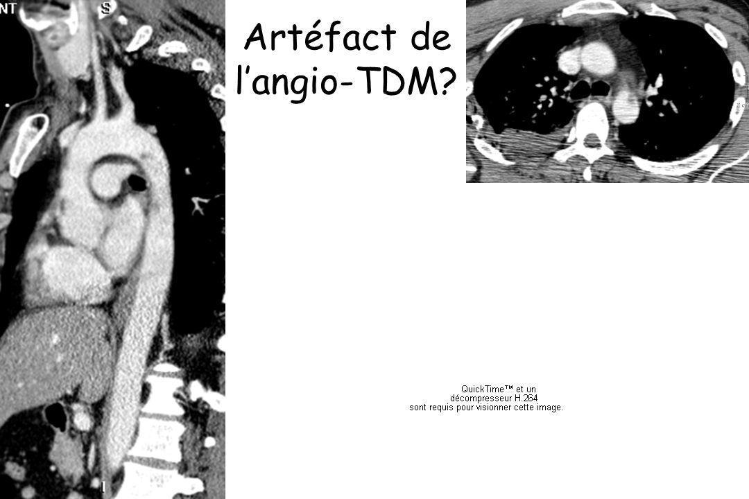 Artéfact de langio-TDM?