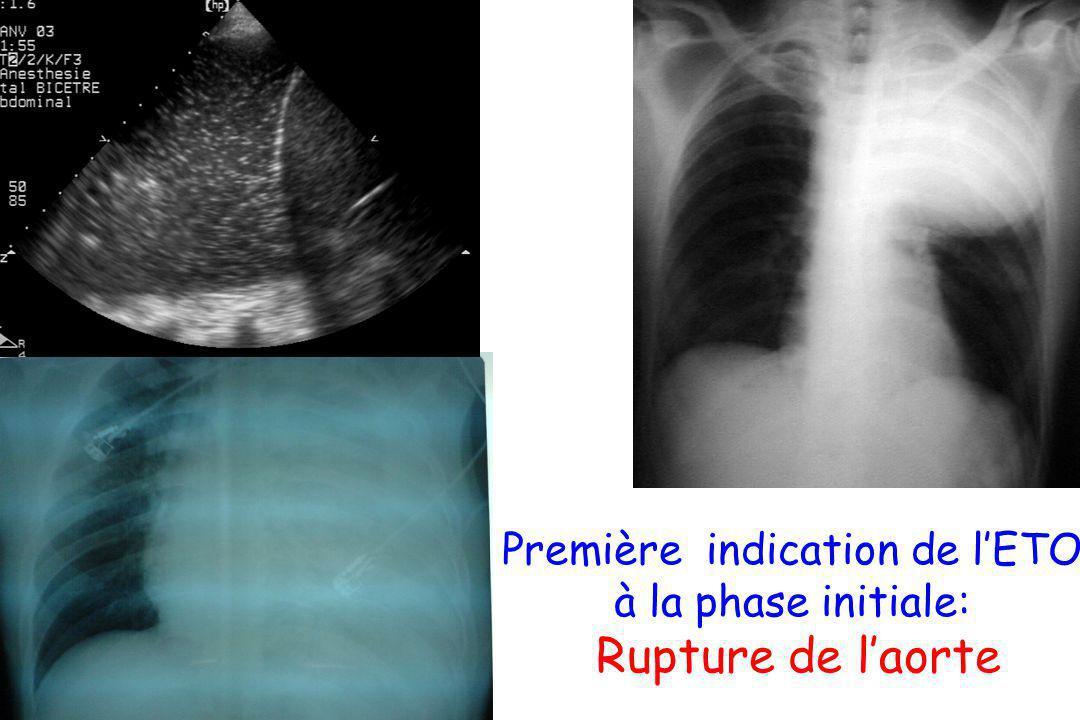 Première indication de lETO à la phase initiale: Rupture de laorte