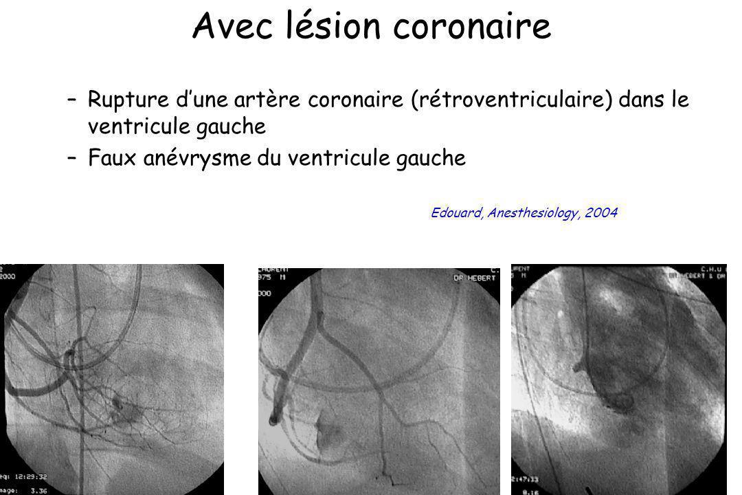 Avec lésion coronaire –Rupture dune artère coronaire (rétroventriculaire) dans le ventricule gauche –Faux anévrysme du ventricule gauche Edouard, Anes