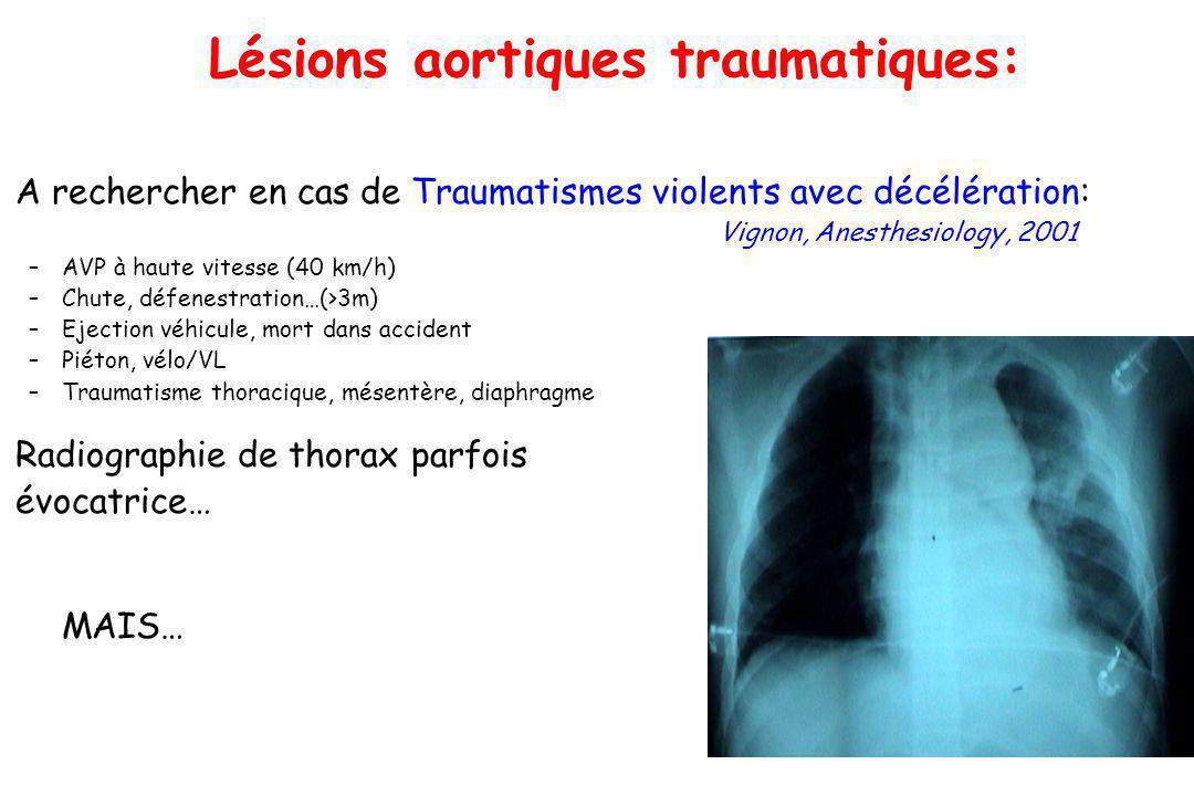 Lésions aortiques traumatiques: A rechercher en cas de Traumatismes violents avec décélération: Vignon, Anesthesiology, 2001 –AVP à haute vitesse (40