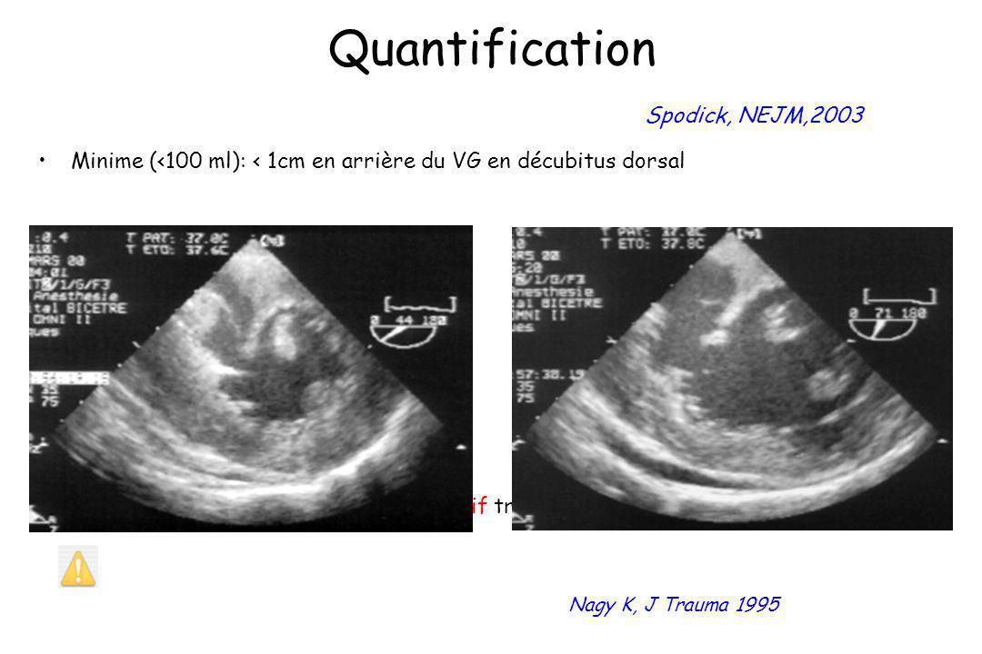 Quantification Spodick, NEJM,2003 Minime (<100 ml): < 1cm en arrière du VG en décubitus dorsal Hémopéricarde localisé et compressif traumatique et pos