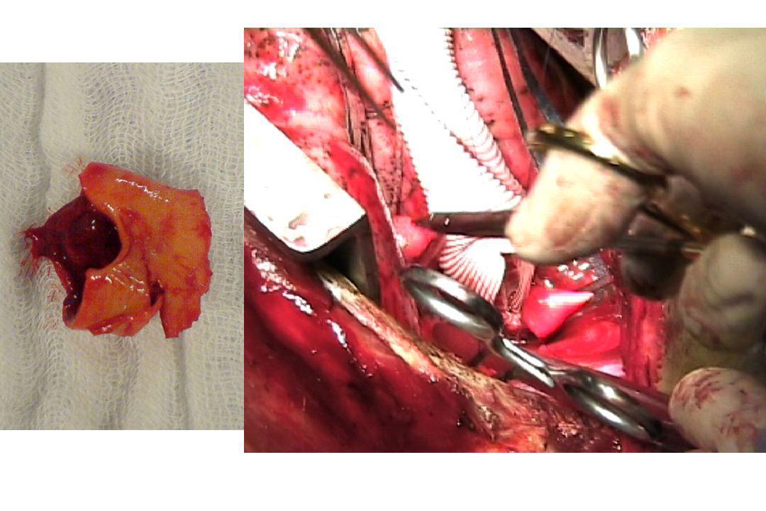 Lésions aortiques traumatiques: A rechercher en cas de Traumatismes violents avec décélération: Vignon, Anesthesiology, 2001 –AVP à haute vitesse (40 km/h) –Chute, défenestration…(>3m) –Ejection véhicule, mort dans accident –Piéton, vélo/VL –Traumatisme thoracique, mésentère, diaphragme Radiographie de thorax parfois évocatrice… MAIS…
