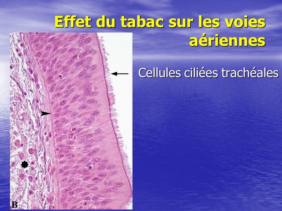 Effet du tabac sur les voies aériennes Cellules ciliées trachéales