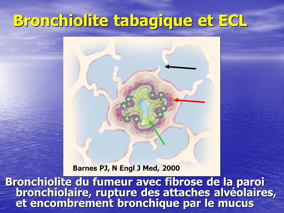 Bronchiolite tabagique et ECL Bronchiolite du fumeur avec fibrose de la paroi bronchiolaire, rupture des attaches alvéolaires, et encombrement bronchique par le mucus Barnes PJ, N Engl J Med, 2000