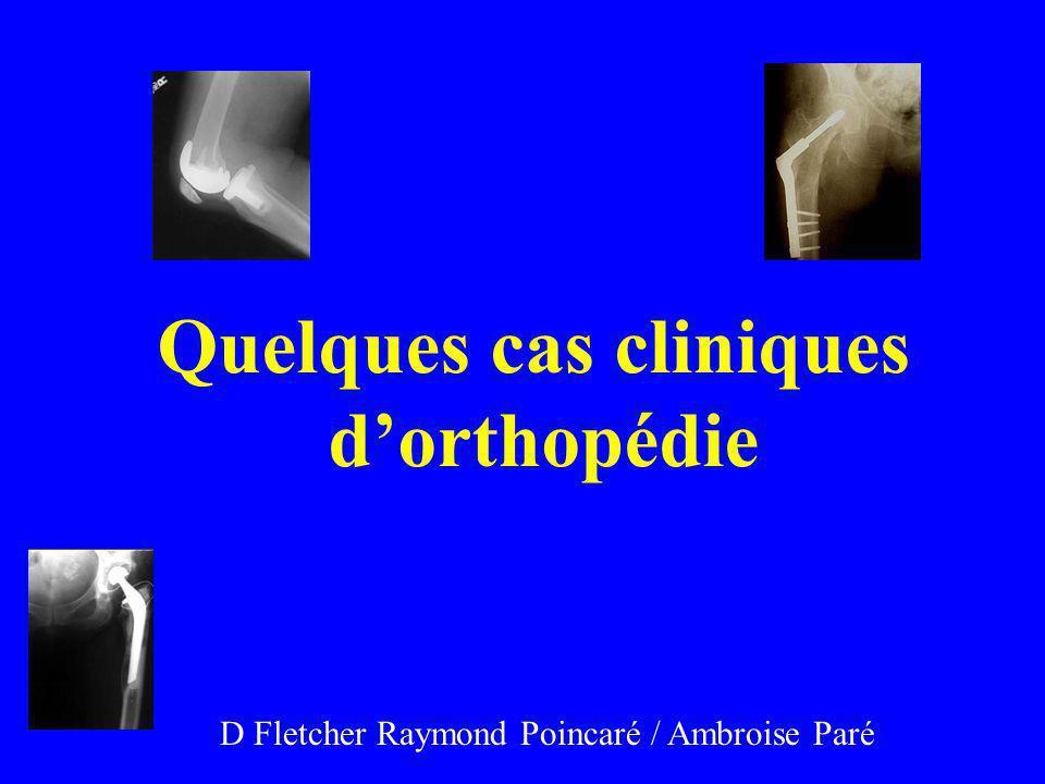 Quelques cas cliniques dorthopédie D Fletcher Raymond Poincaré / Ambroise Paré
