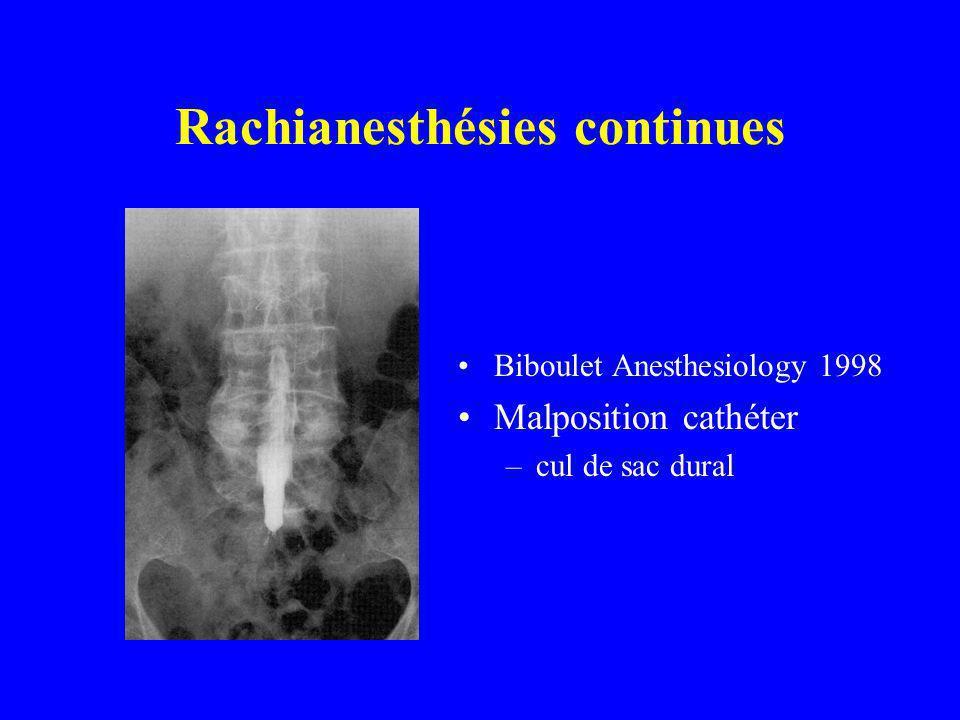 Biboulet Anesthesiology 1998 Malposition cathéter –cul de sac dural Rachianesthésies continues