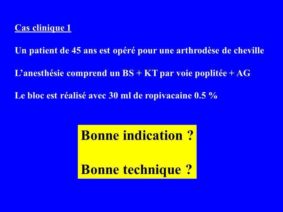 Cas clinique 1 Un patient de 45 ans est opéré pour une arthrodèse de cheville Lanesthésie comprend un BS + KT par voie poplitée + AG Le bloc est réalisé avec 30 ml de ropivacaine 0.5 % Bonne indication .