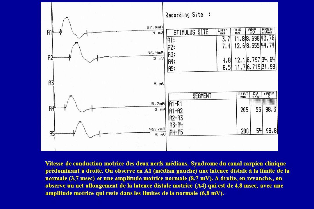Vitesse de conduction motrice des deux nerfs médians. Syndrome du canal carpien clinique prédominant à droite. On observe en A1 (médian gauche) une la