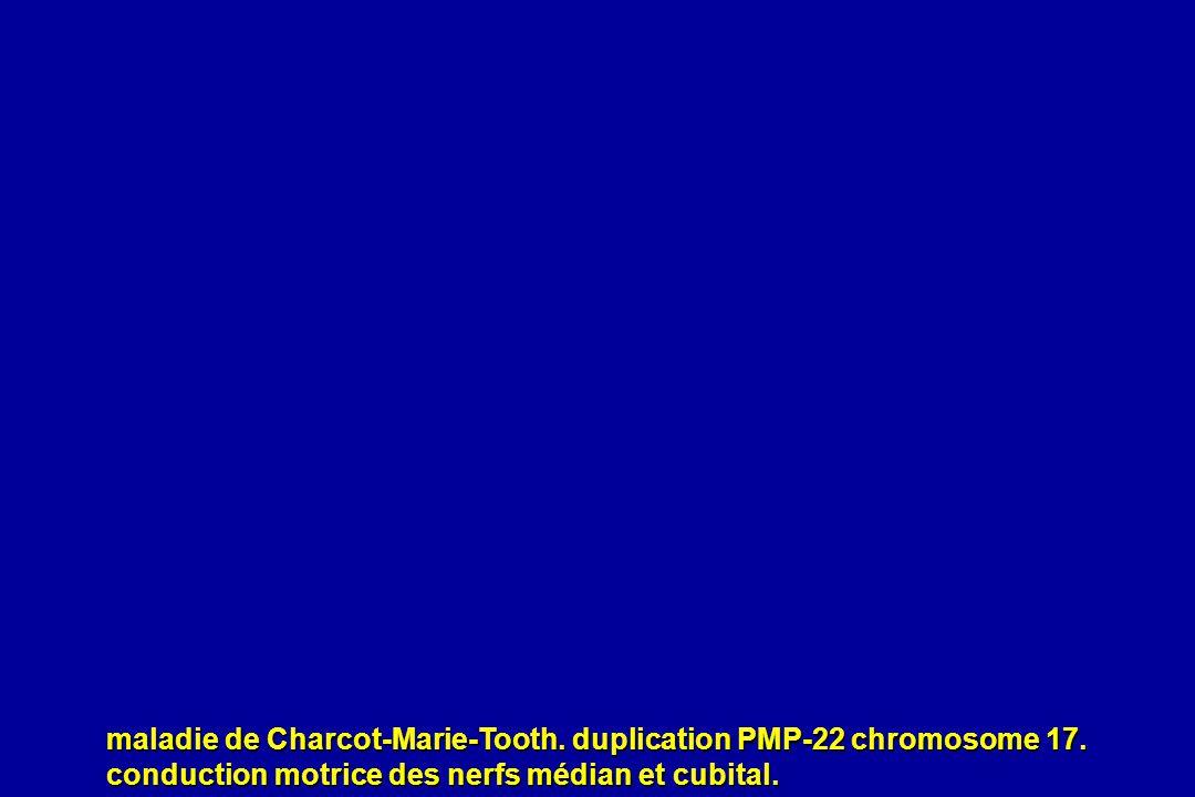 maladie de Charcot-Marie-Tooth. duplication PMP-22 chromosome 17. conduction motrice des nerfs médian et cubital.