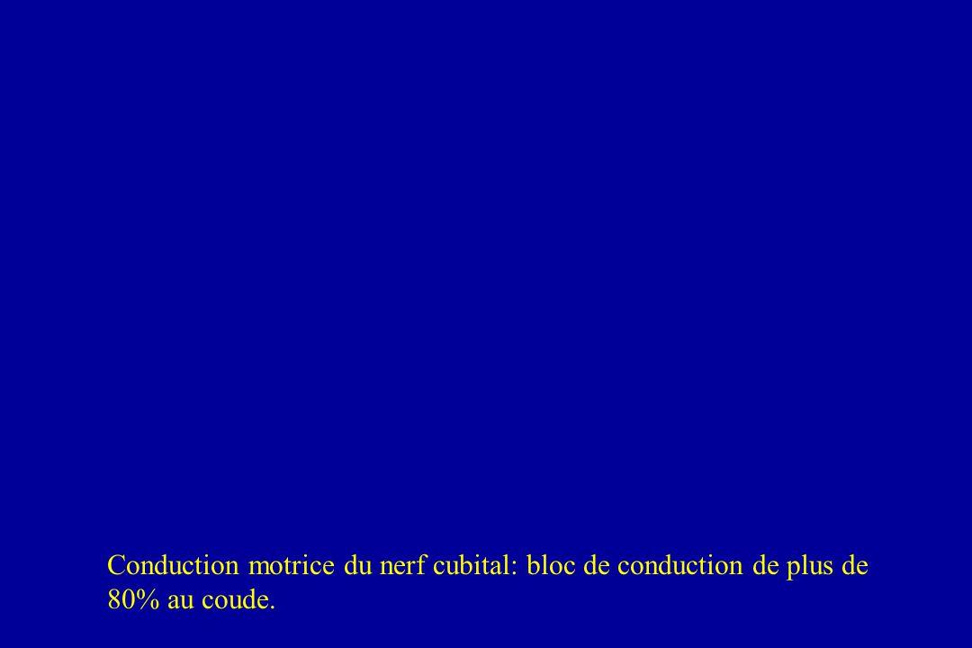 Conduction motrice du nerf cubital: bloc de conduction de plus de 80% au coude.