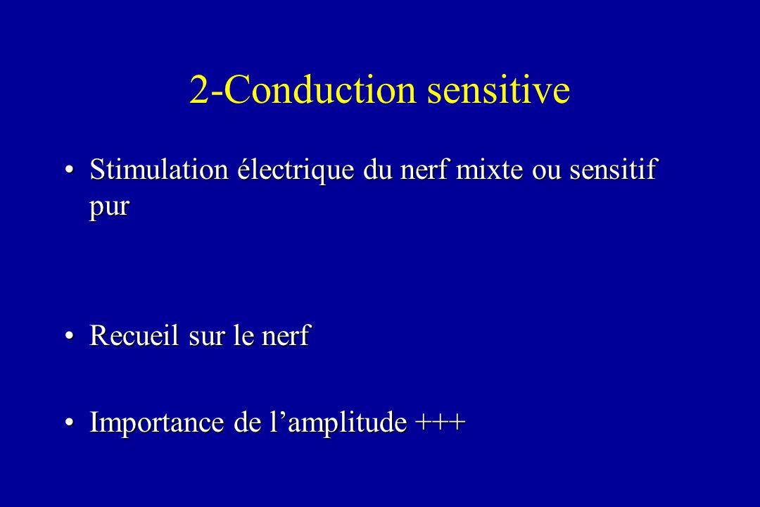 2-Conduction sensitive Stimulation électrique du nerf mixte ou sensitif purStimulation électrique du nerf mixte ou sensitif pur Recueil sur le nerfRec