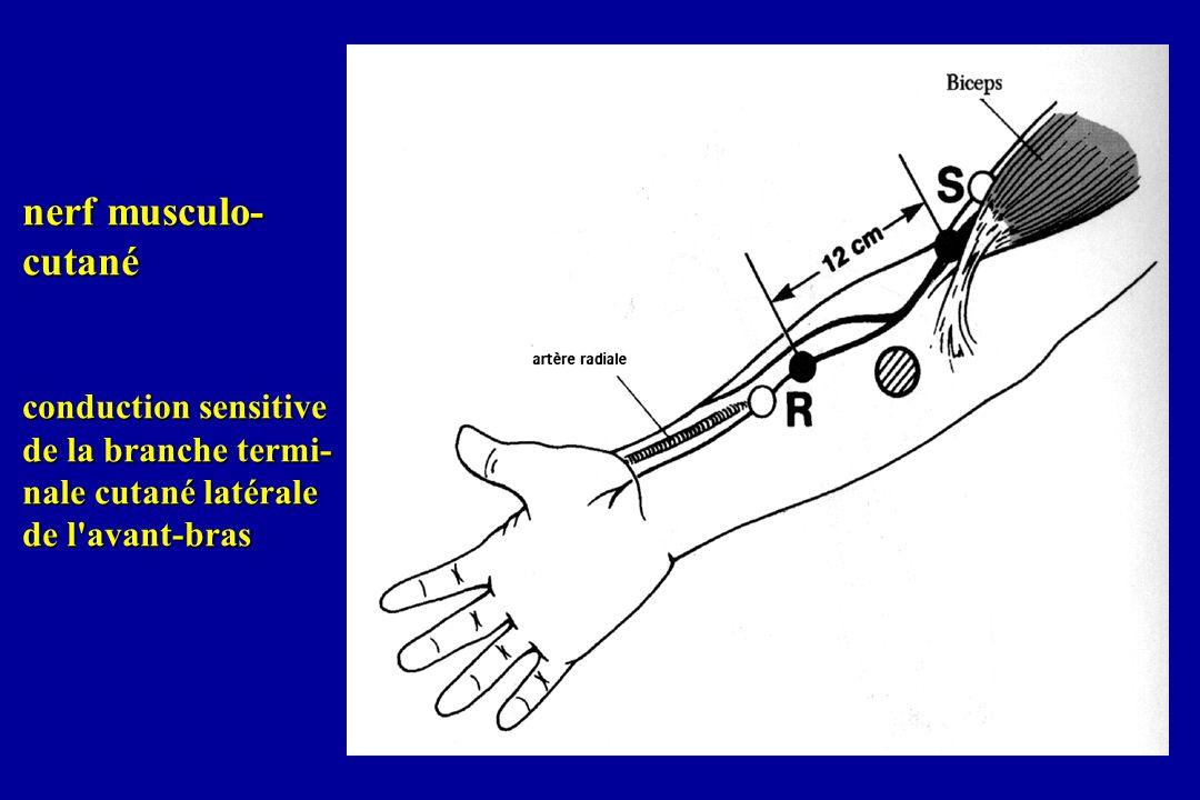 nerf musculo- cutané conduction sensitive de la branche termi- nale cutané latérale de l'avant-bras