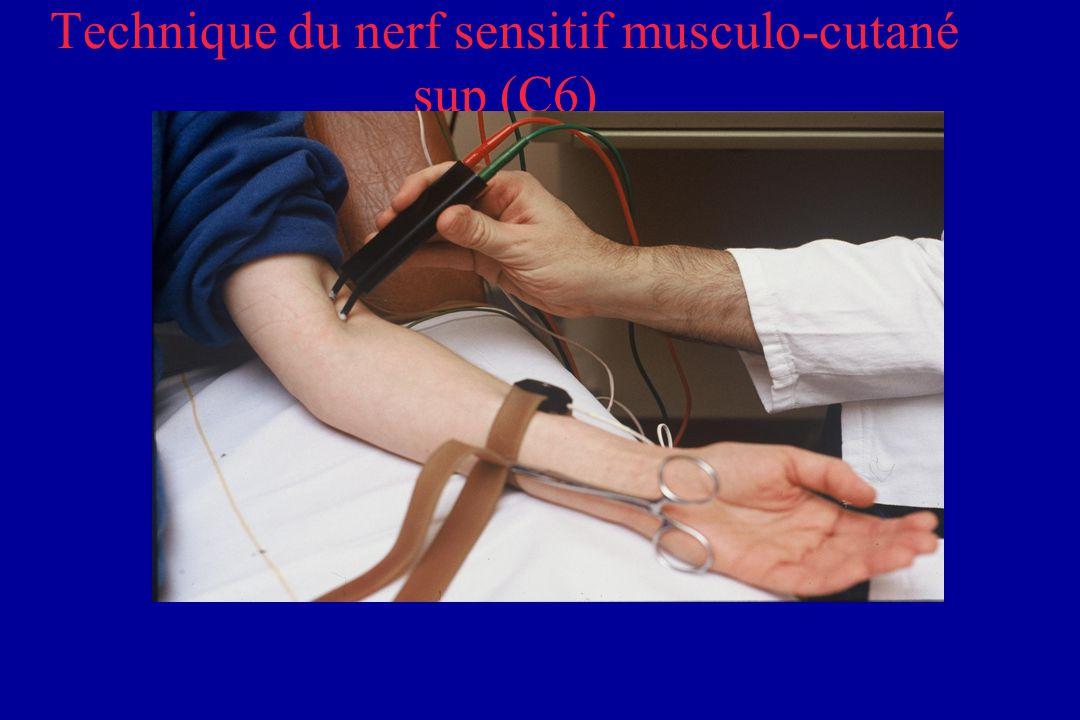 Technique du nerf sensitif musculo-cutané sup (C6)