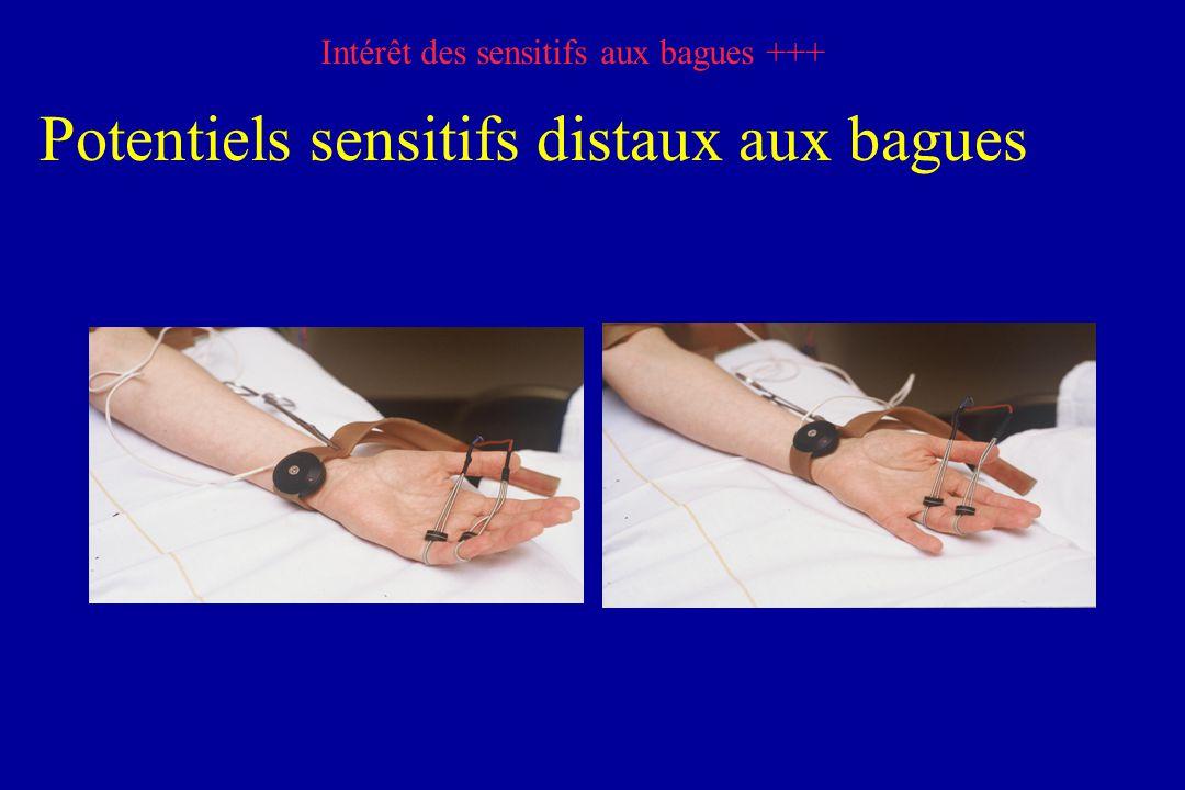 Potentiels sensitifs distaux aux bagues Intérêt des sensitifs aux bagues +++
