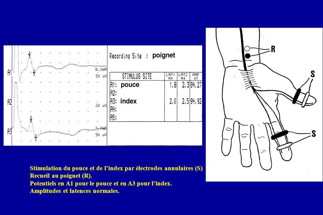 Stimulation du pouce et de lindex par électrodes annulaires (S) Recueil au poignet (R). Potentiels en A1 pour le pouce et en A3 pour lindex. Amplitude