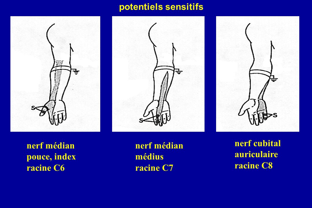 nerf médian pouce, index racine C6 nerf médian médius racine C7 nerf cubital auriculaire racine C8 potentiels sensitifs