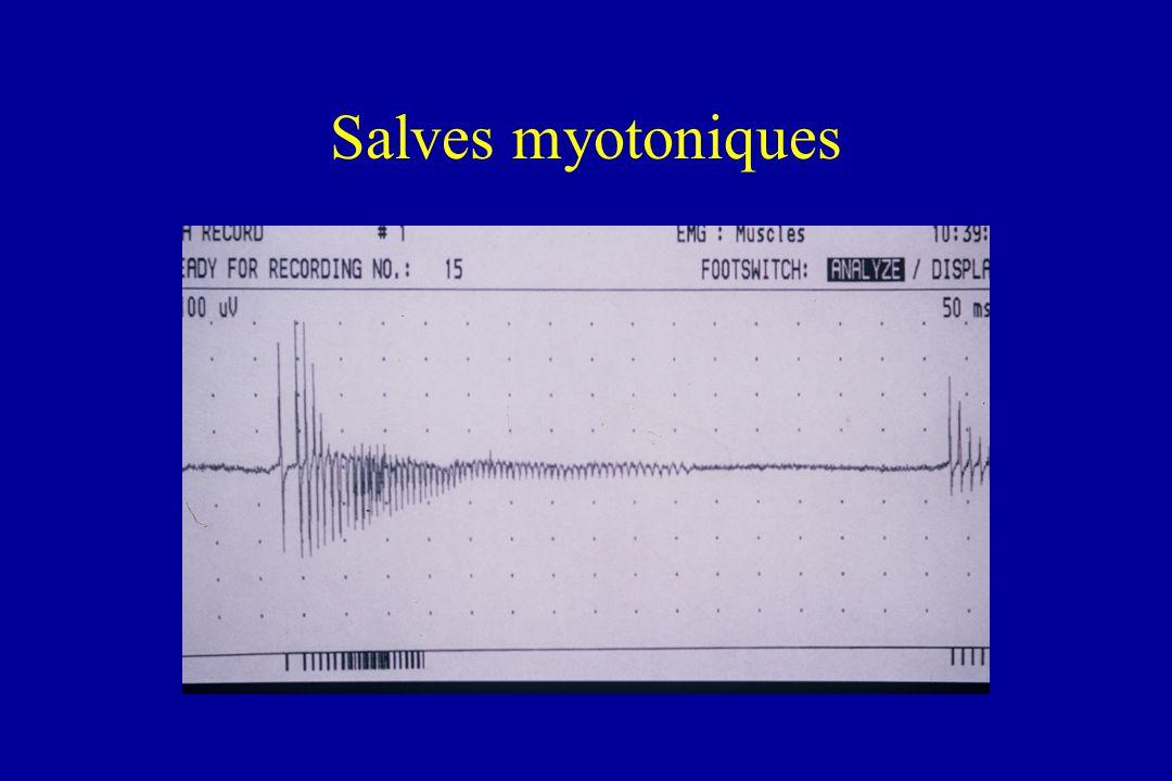 Salves myotoniques