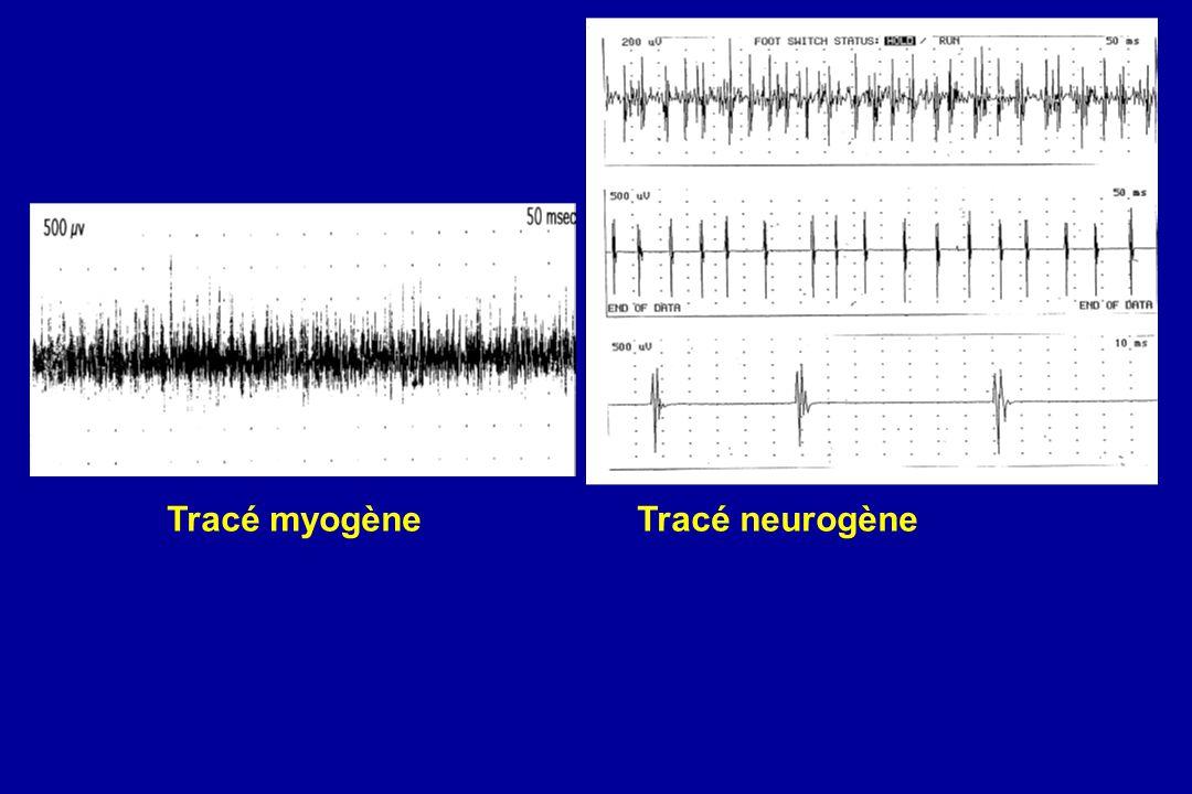 Tracé myogène Tracé neurogène