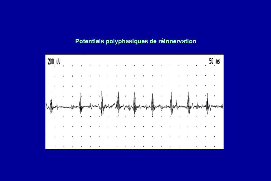 Potentiels polyphasiques de réinnervation