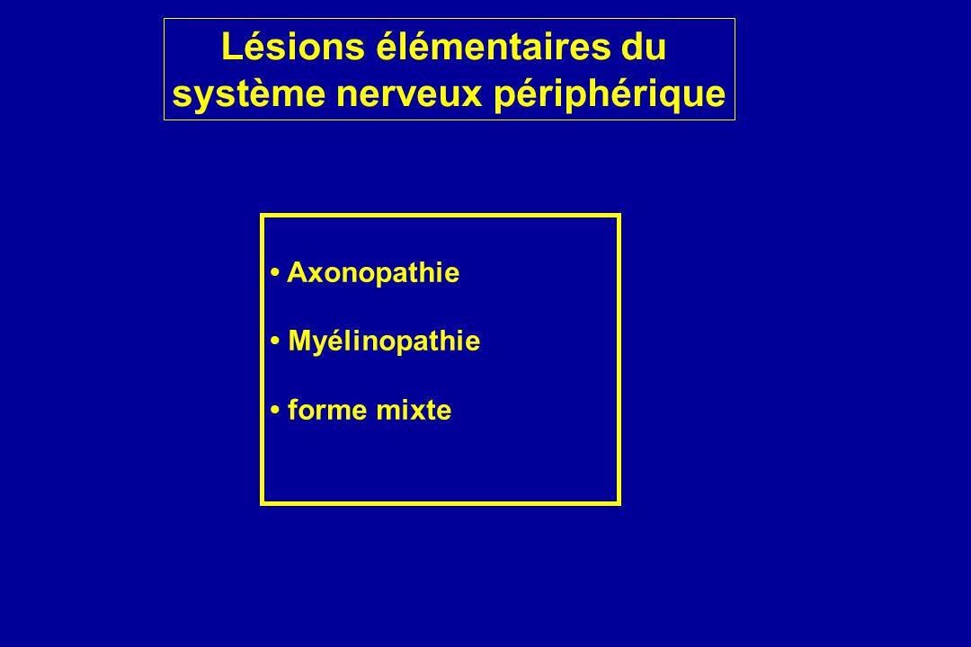 Lésions élémentaires du système nerveux périphérique Axonopathie Myélinopathie forme mixte