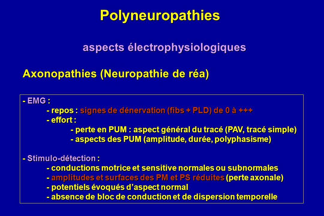 Polyneuropathies Polyneuropathies aspects électrophysiologiques Axonopathies (Neuropathie de réa) - EMG : - repos : signes de dénervation (fibs + PLD)