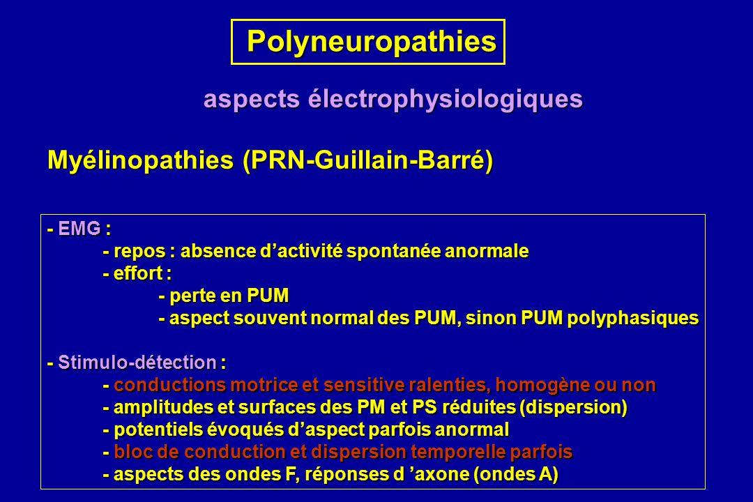 Polyneuropathies Polyneuropathies aspects électrophysiologiques Myélinopathies (PRN-Guillain-Barré) - EMG : - repos : absence dactivité spontanée anor