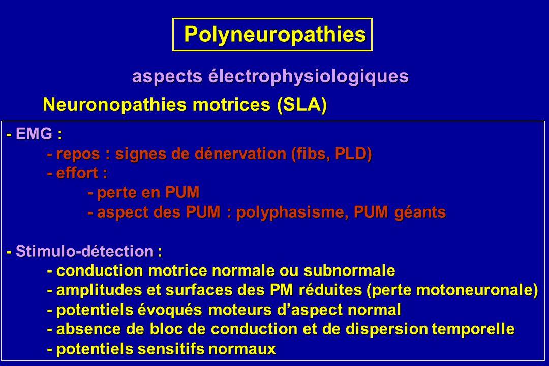 Polyneuropathies Polyneuropathies aspects électrophysiologiques Neuronopathies motrices (SLA) - EMG : - repos : signes de dénervation (fibs, PLD) - ef
