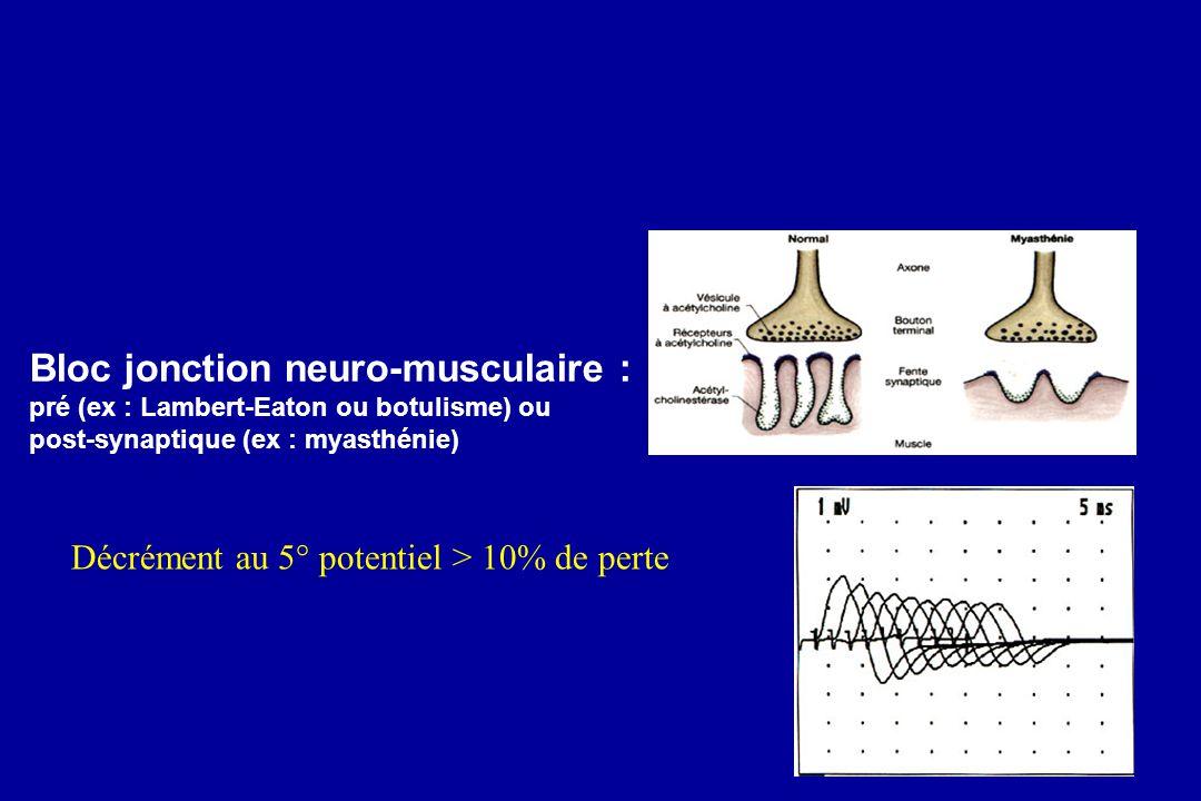 Bloc jonction neuro-musculaire : pré (ex : Lambert-Eaton ou botulisme) ou post-synaptique (ex : myasthénie) Décrément au 5° potentiel > 10% de perte