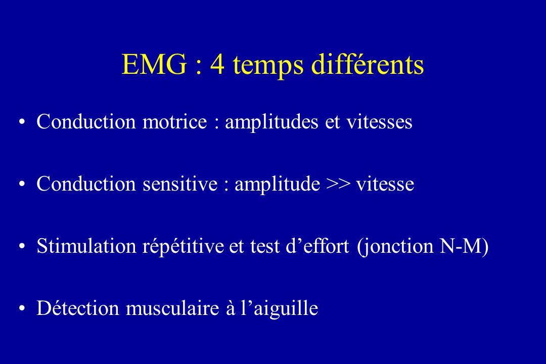 EMG : 4 temps différents Conduction motrice : amplitudes et vitesses Conduction sensitive : amplitude >> vitesse Stimulation répétitive et test deffor