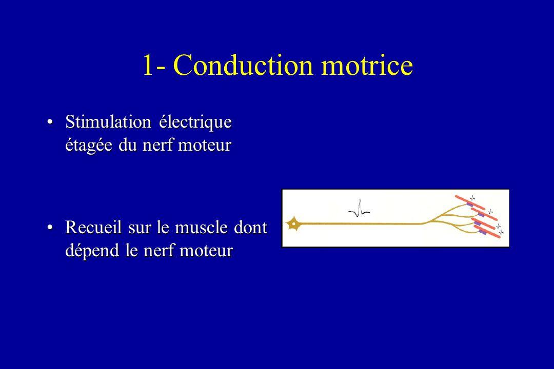 1- Conduction motrice Stimulation électrique étagée du nerf moteurStimulation électrique étagée du nerf moteur Recueil sur le muscle dont dépend le ne