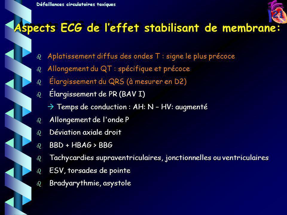 21 Aspects ECG de leffet stabilisant de membrane: b Aplatissement diffus des ondes T : signe le plus précoce b Allongement du QT : spécifique et préco