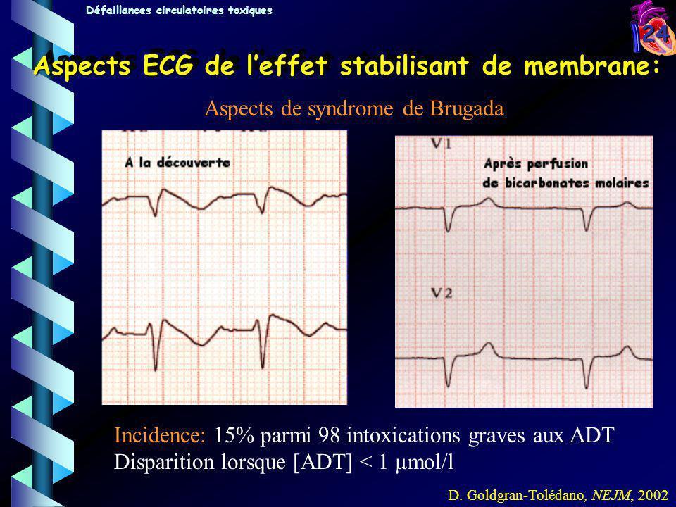 24 Aspects ECG de leffet stabilisant de membrane: Aspects de syndrome de Brugada D. Goldgran-Tolédano, NEJM, 2002 A la découverte:Après perfusion de b