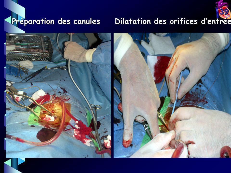 39 Préparation des canules Dilatation des orifices dentrée