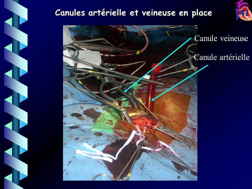 41 Canule artérielle Canule veineuse Canules artérielle et veineuse en place