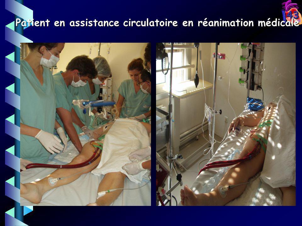 43 Patient en assistance circulatoire en réanimation médicale