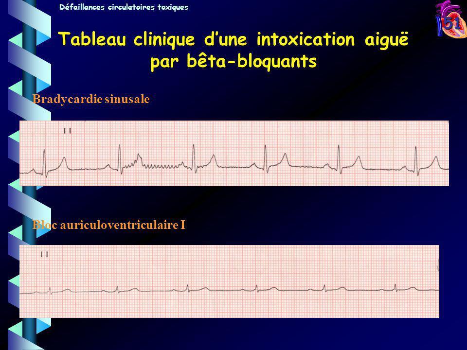 51 Tableau clinique dune intoxication aiguë par bêta-bloquants Bradycardie sinusale Bloc auriculoventriculaire I Défaillances circulatoires toxiques