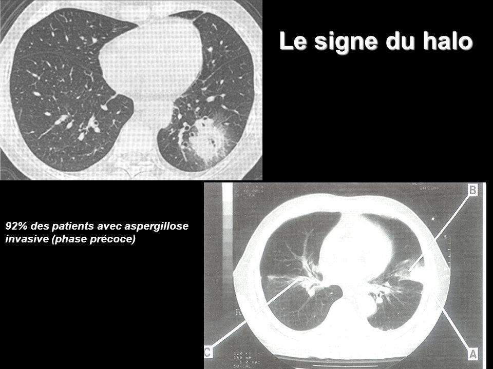 Le signe du halo 92% des patients avec aspergillose invasive (phase précoce)