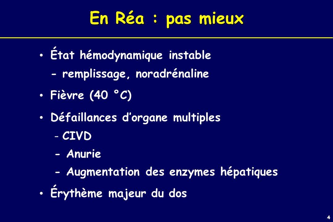 4 En Réa : pas mieux État hémodynamique instable - remplissage, noradrénaline Fièvre (40 °C) Défaillances dorgane multiples - CIVD - Anurie - Augmentation des enzymes hépatiques Érythème majeur du dos