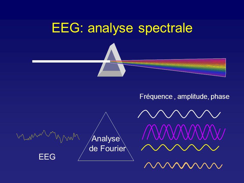 EEG: analyse spectrale Fréquence, amplitude Spectre de puissance Fréquence médiane (8 Hz) Front de fréquence spectrale 95% (20 Hz) 4 bandes: (0,25-4 Hz) (4-8 Hz), (8-13 Hz), (> 13 Hz)