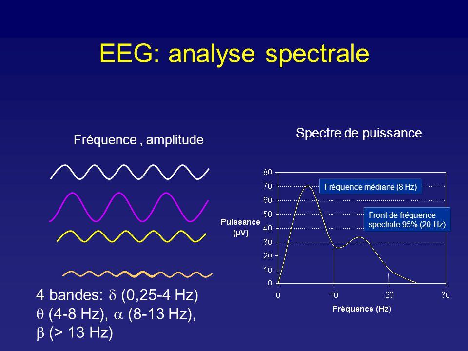 EEG: induction d anesthésie - PPF