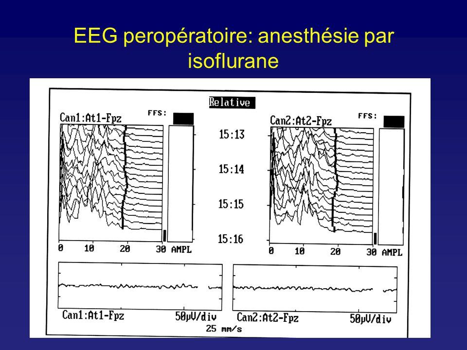 EEG: réveil d anesthésie
