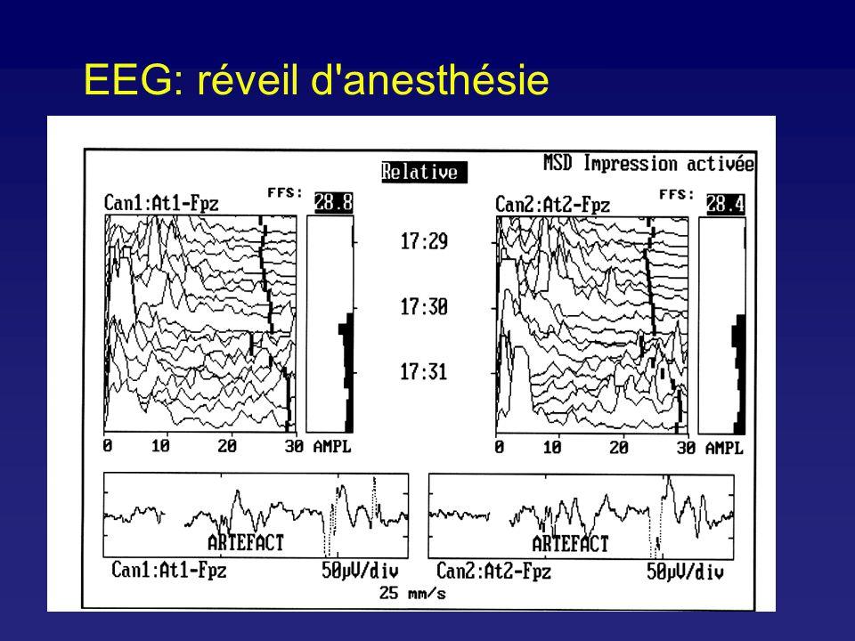 SEF 95% Kuizenga, Br J Anaesth 2001;86:354-60 Biphasic 95% SEF changes