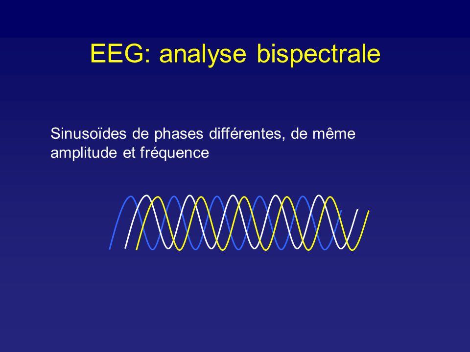 Index bispectral: calcul BIS Digitalisation + Filtrage artéfacts Transformée de Fourier rapide Béta Ratio (log (P 30-47 Hz /P 11-20Hz ) Détection de Burst suppression Algorithmes Bispectre, Bicohérence EEG Analyse spectrale