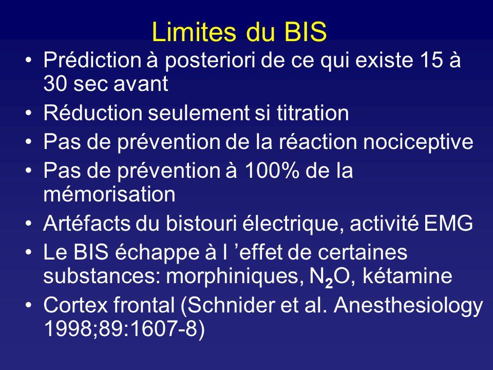 BIS during physiologic sleep Nieuwenhuijs et al. Anesth Analg 2002;94:125-9 SWS: slow wave sleep