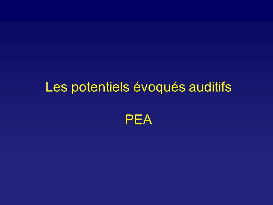 Potentiels évoqués auditifs: schéma Clicks AmplificationMicro-ordinateur Affichage