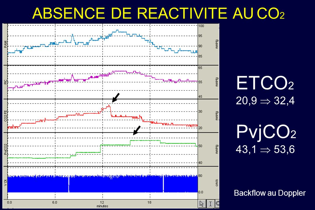 ABSENCE DE REACTIVITE AU CO 2 HAMELET ETCO 2 20,9 32,4 PvjCO 2 43,1 53,6 Backflow au Doppler