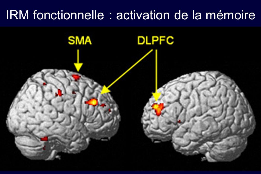 IRM fonctionnelle : activation de la mémoire